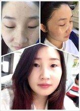 肤诗华娜祛斑评价-祛斑产品排行榜10强
