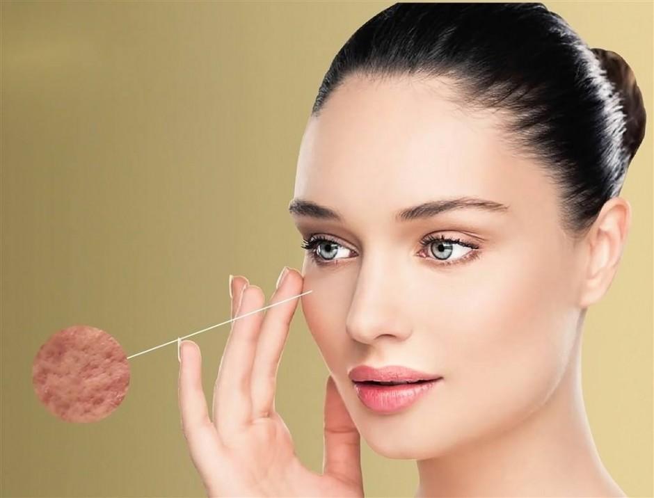 女人最不能容受的肌肤问题,你也有吗?