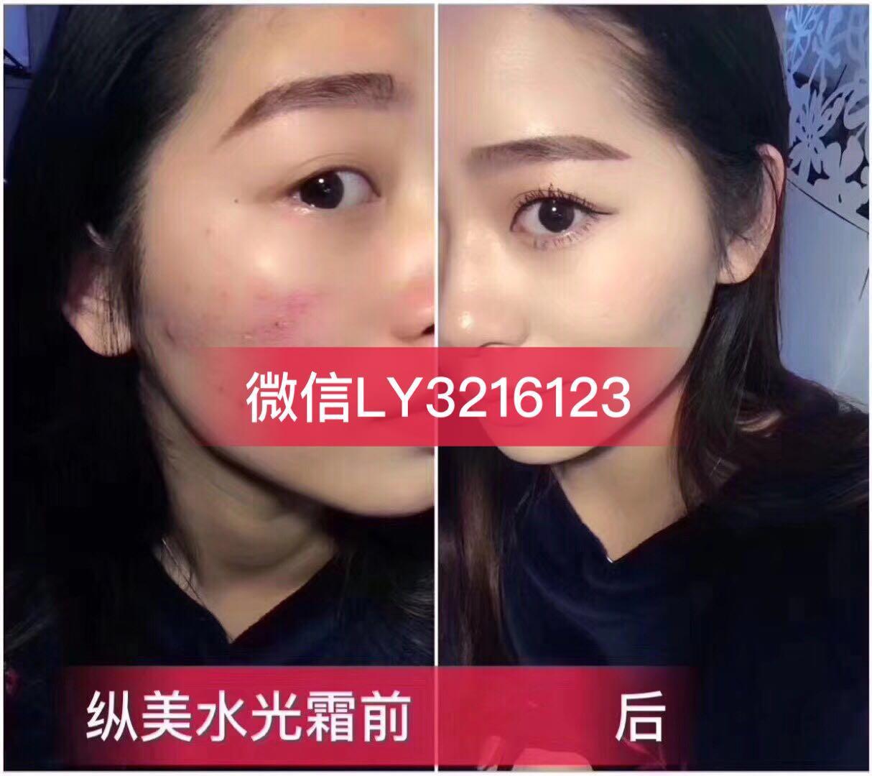 广西桂林纵美水光霜怎么代理多少钱推荐团队