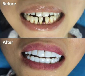 大使口腔美容用品工具優梨美牙美齒美白產品技術經銷