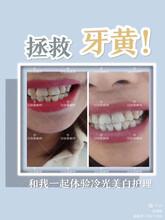 牙倍美美牙儀怎么代理,牙倍美真的可以牙齒美白嗎圖片