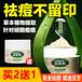 古遗汉方祛痘膏纯植物萃取