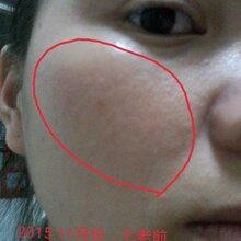 敏感肌膚反復過敏怎么辦?七老楊永花的親身經歷