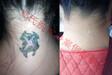 多年从事专业洗纹身签合同包洗干净所有纹身及疤痕修复
