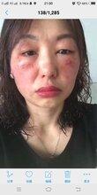 激素臉發作是什么樣的?激素臉真的可以修復好嗎?