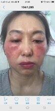 激素臉的早期癥狀是什么?七老楊永花