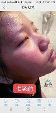 為什么一吃辣就長痘?皮膚容易長痘痘用什么好?楊永花