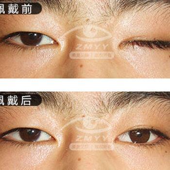 【义眼片义眼台义眼片制造义眼片价钱】-黄页88网