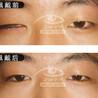 能转动的义眼活动假眼义眼价格仿真假眼