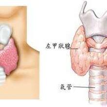 甲状腺结节还能投保重疾险吗?