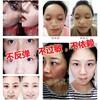 广州肤润化妆品有限公司他家的修护过敏这块产品怎么样?