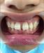 成都牙齿间隙大修复哪家好多少钱