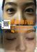 赛灵思药业全新推出不开刀不手术不雾化去眼袋技术学习技术眼部护肤品