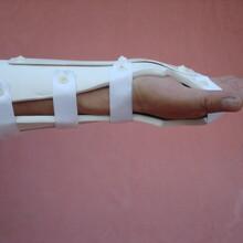 医用外固定支具前臂固定支具塑型固定支具厂家供应金亿康外用固定支具