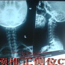 颈椎病有什么症状颈椎病的症状
