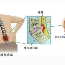 怎么能治好腰椎间盘突出症?