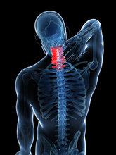 透析颈椎病重新找回健康