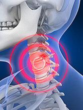 乔氏黑玉膏告诉您颈椎病治疗的方法