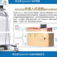 热力塑超声波聚焦仪器脂肪塑身仪热力塑溶脂仪热立塑厂家直销