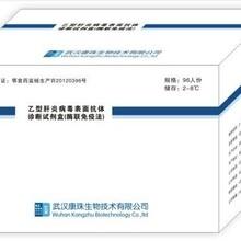 乙肝抗体检测试剂生产厂家