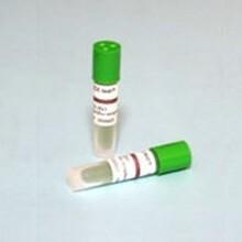 EO生物指示剂_EO灭菌生物指示剂