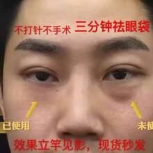 无针雾化祛皱的注意事项、无针雾化去皱去眼袋,及详细介绍