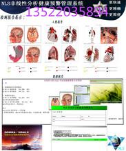 人体磁感应分析仪健康检测仪心脑血管检测图片