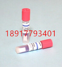 爱斯牌水浴压力蒸汽灭菌生物指示剂