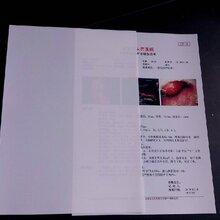 医用干式瓷白激光A4双面打印耗材(超声科)图片