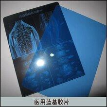 医用激光干式蓝基胶片打印耗材(放射科)图片