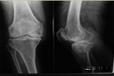 膝关节肌肉萎缩站立不稳是怎么回事膝关节退变贴仙草骨痛贴