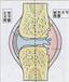 创伤性滑膜炎怎样治疗效果好仙草骨痛贴创伤性滑膜炎怎么保守治疗仙草骨痛贴