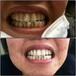 婧氏牙膏真的能美白吗?是三无产品吗?