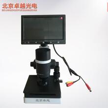 北京卓越高清微循环检测仪末梢微循环检测仪