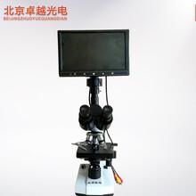 北京卓越双目一滴血检测仪螨虫检测仪
