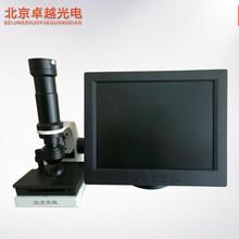 北京卓越高清微循环检测仪
