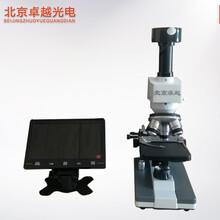 北京卓越301B一滴血检测仪
