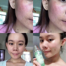 七老护肤品效果怎么样?七老护肤品代理是怎么做的?七老亲肌嫩肤系列