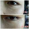 ST眼膜怎么代理