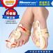 敏斯特大腳拇指外翻矯正器升級版拇外翻矯正器腳趾外翻