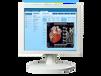 MOZO1、2、3、4、5、6、8MP高性价比进口品质放射科医用显示器