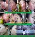 激素脸排异期间的注意事项七老光头强?#28393;?#20161;激素修复老师分享