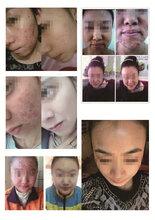 鸿缘润修肌泉皮膜养润修护面膜敏感肌激素脸修护面膜