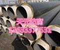 河北Q235B聚氨酯钢管