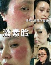 使用七老亲肌系列激素脸恢复需要多久?激素脸可以自己恢复吗?
