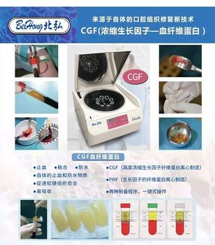 供应变速离心机北弘BH-200美容离心机口腔种植离心机血清分离