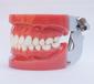 A1標準牙模型
