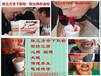 舌下取栓培训哪家最好脉立方王氏刺血疗法