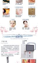 北京欧洲之星----祛疤痕,痛不痛!图片