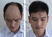 隐形无痕增发技术怎么样假发和织发补发的区别头发稀少怎么解决